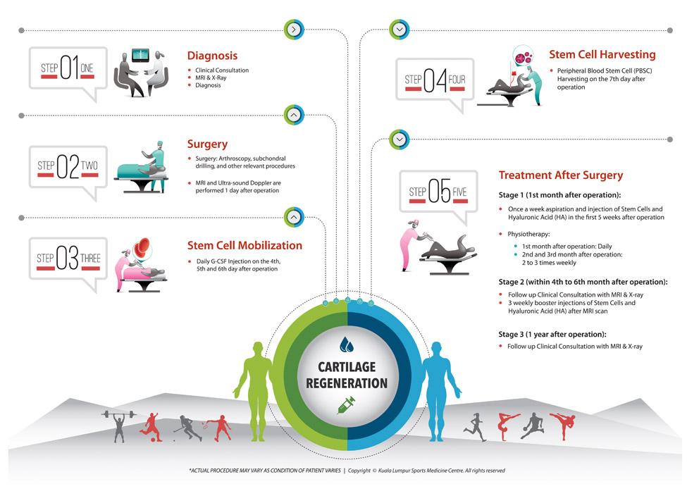 KLSMC Treatment Procedure Infographic