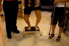 Knee Joint Replacement (On Steps) – Before
