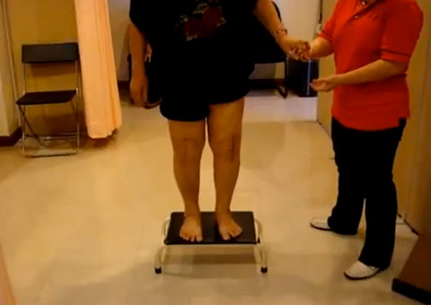 Knee Joint Replacement (On Steps) – After